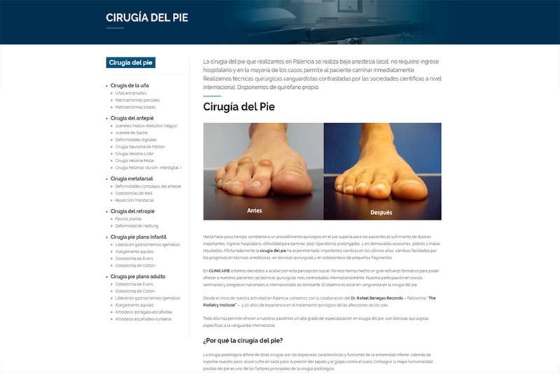 Cirugías del pie en Palencia